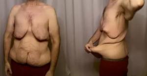 slapp hud på magen